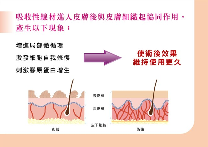 縫線拉皮圖2.jpg